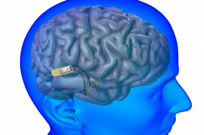 La Darpa entend tester une interface neuronale pour am�liorer la communication soldat machine. (Cr�dit D.R.)