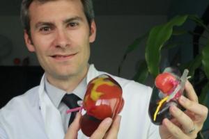 L'hôpital de Bordeaux recourt à l'impression 3D pour les opérations du rein