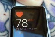 Le fonctionnement de l'Apple Watch perturb� par les tatouages