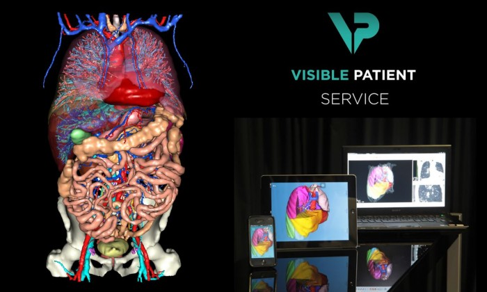 Visible Patient Service