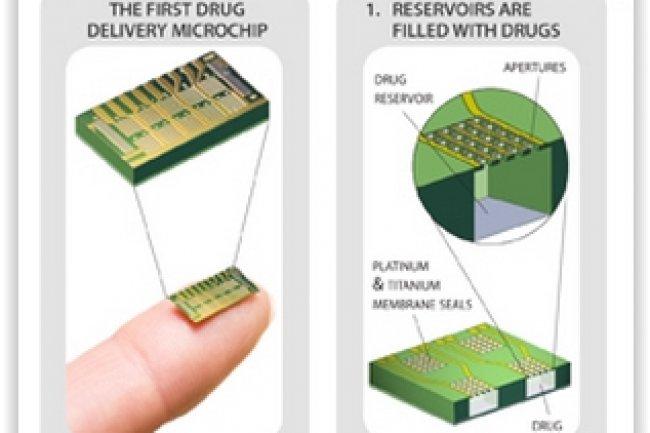 Un système de microréservoirs activable via une télécommande permet de disperser dans le corps une dose de contraceptif. (crédit : D.R.)