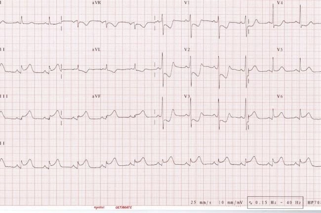 Le battement cardiaque pourrait servir de mot de passe biométrique pour chiffrer les dossiers médicaux des patients.