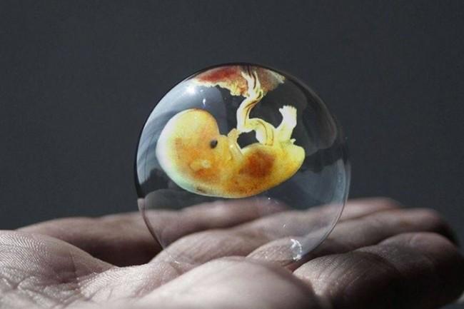 L'application développée par la start-up Life Whisperer doit permettre d'obtenir un diagnostic instantané des embryons utilisés dans le cadre d'une fécondation in-vitro. (crédit : D.R.)