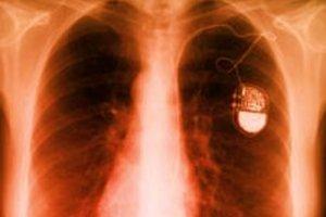 Pacemaker hacké : risque de décharge mortelle